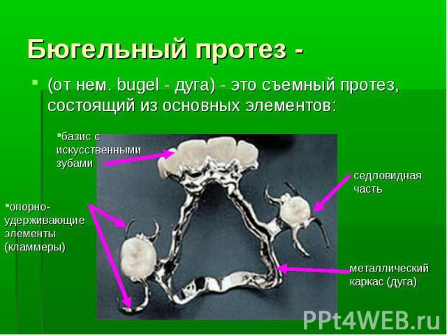Бюгельный протез - (от нем. bugel - дуга) - это съемный протез, состоящий из основных элементов: