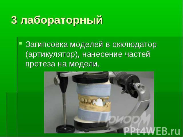 Загипсовка моделей в окклюдатор (артикулятор), нанесение частей протеза на модели.