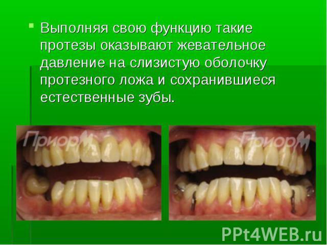Выполняя свою функцию такие протезы оказывают жевательное давление на слизистую оболочку протезного ложа и сохранившиеся естественные зубы.