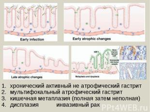 хронический активный не атрофический гастритмультифокальный атрофический гастрит
