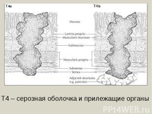 Т4 – серозная оболочка и прилежащие органы