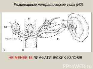 Регионарные лимфатические узлы (N2)НЕ МЕНЕЕ 15 ЛИМФАТИЧЕСКИХ УЗЛОВ!!!