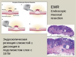 EMREndoscopic mucosal resection Эндоскопическая резекция слизистой ± диссекция