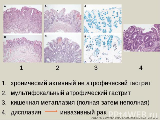 хронический активный не атрофический гастритмультифокальный атрофический гастриткишечная метаплазия (полная затем неполная)дисплазия инвазивный рак