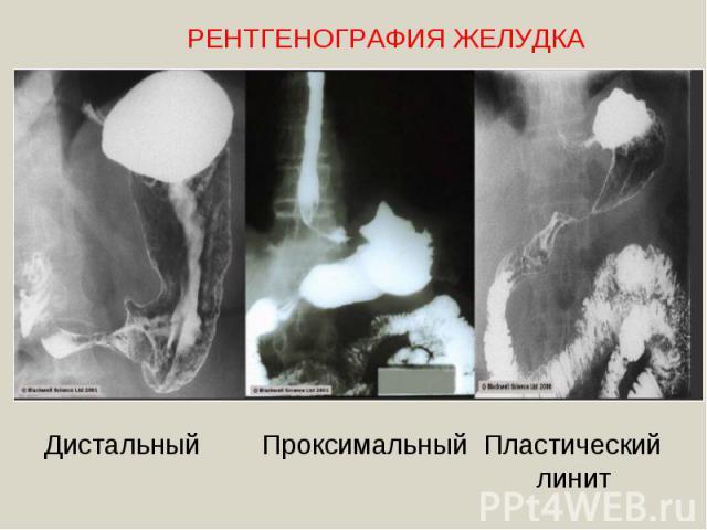 РЕНТГЕНОГРАФИЯ ЖЕЛУДКАДистальный Проксимальный Пластический линит