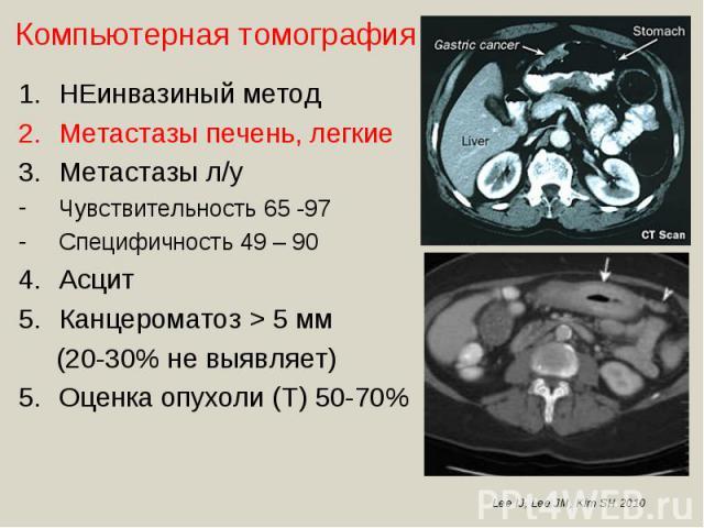 НЕинвазиный методМетастазы печень, легкиеМетастазы л/уЧувствительность 65 -97Специфичность 49 – 90АсцитКанцероматоз > 5 мм (20-30% не выявляет)Оценка опухоли (Т) 50-70%