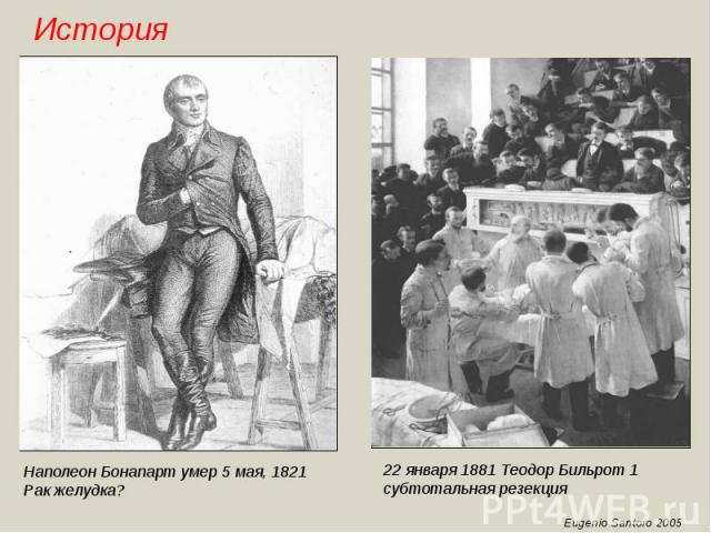 Наполеон Бонапарт умер 5 мая, 1821Рак желудка?22 января 1881 Теодор Бильрот 1 субтотальная резекция
