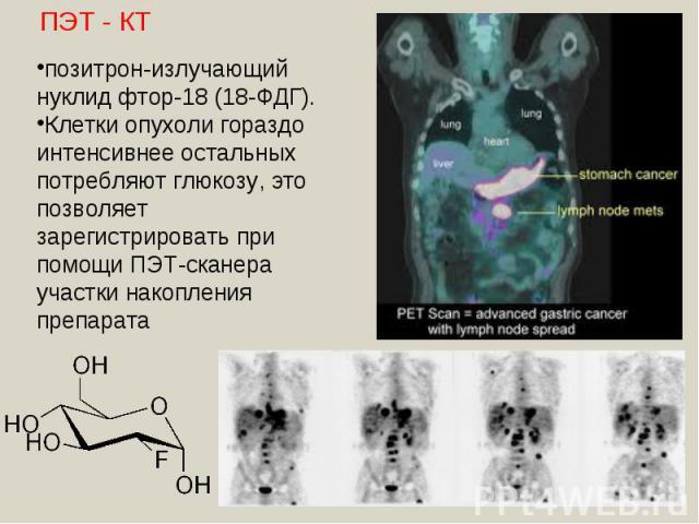 позитрон-излучающий нуклид фтор-18 (18-ФДГ). Клетки опухоли гораздо интенсивнее остальных потребляют глюкозу, это позволяет зарегистрировать при помощи ПЭТ-сканера участки накопления препарата