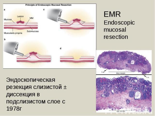 EMREndoscopic mucosal resection Эндоскопическая резекция слизистой ± диссекция в подслизистом слое с 1978г