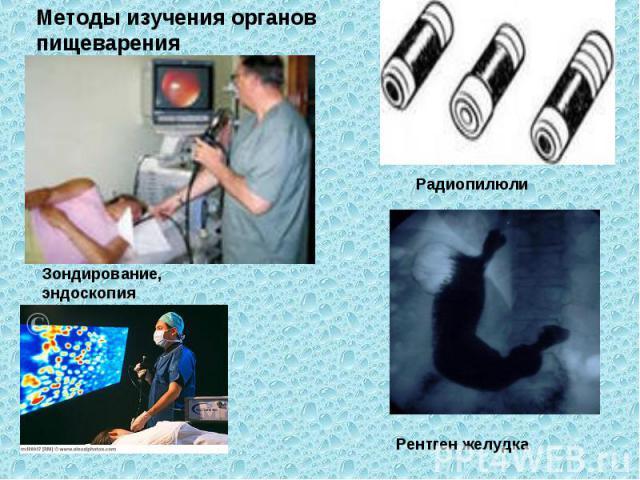 Методы изучения органов пищеварения Рентген желудка Зондирование, эндоскопия Радиопилюли