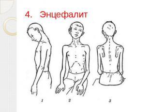 4.Энцефалит