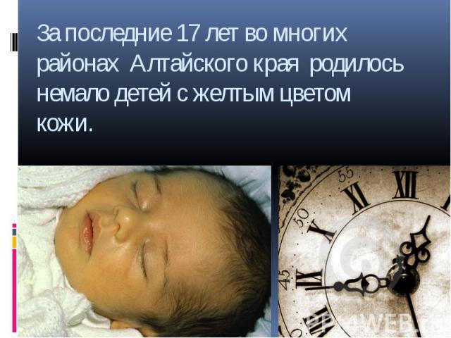 За последние 17 лет во многих районах Алтайского края родилось немало детей с желтым цветом кожи.