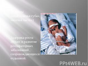 Дефекты лица( «заячья губа», «волчья пасть») Задержка роста лёгких и развитие ре