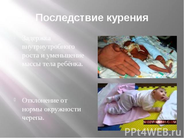Последствие курения Задержка внутриутробного роста и уменьшение массы тела ребёнка. Отклонение от нормы окружности черепа.