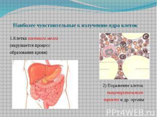 Наиболее чувствительные к излучению ядра клеток 1.Клетки костного мозга (нарушае