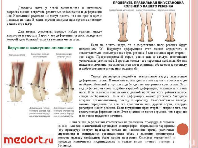 Довольно часто у детей дошкольного и школьного возраста можно встретить различные заболевания и деформации ног. Неопытные родители не могут понять, что же происходит с ножками их чада. В таких случаях консультация ортопеда поможет решить эту задачу.…