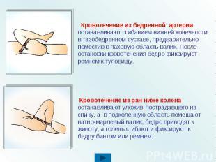 Кровотечение из бедренной артерии останавливают сгибанием нижней конечности в та