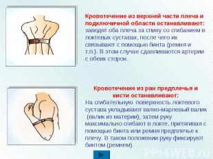 Кровотечение из верхней части плеча и подключичной области останавливают: заводя