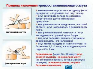 Правила наложения кровоостанавливающего жгута накладывать жгут только на одежду