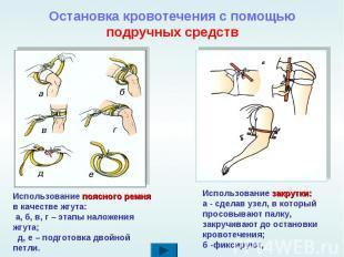 Остановка кровотечения с помощью подручных средствИспользование поясного ремня в