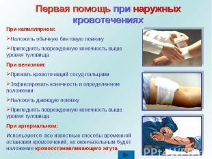Первая помощь при наружных кровотеченияхПри капиллярном: Наложить обычную бинтов