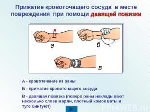 Прижатие кровоточащего сосуда в месте повреждения при помощи давящей повязки А -