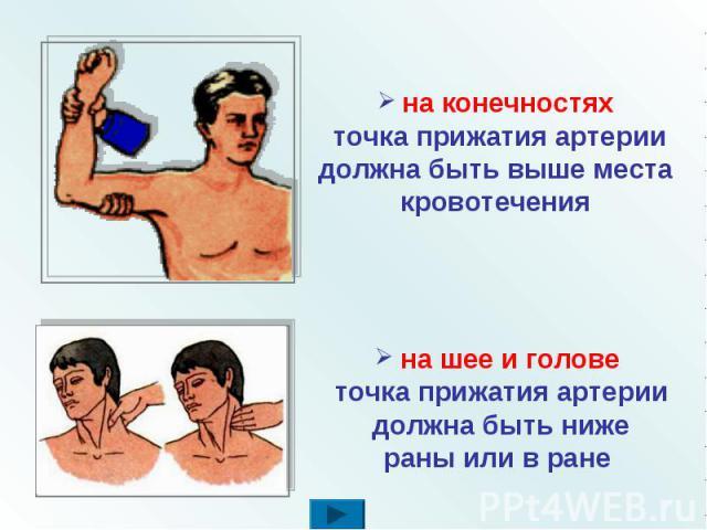 на конечностях точка прижатия артерии должна быть выше места кровотечения на шее и голове точка прижатия артерии должна быть ниже раны или в ране