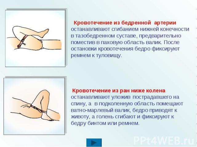 Кровотечение из бедренной артерии останавливают сгибанием нижней конечности в тазобедренном суставе, предварительно поместив в паховую область валик. После остановки кровотечения бедро фиксируют ремнем к туловищу. Кровотечение из ран ниже колена ост…