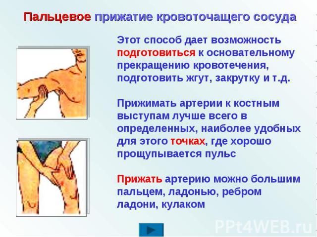 Пальцевое прижатие кровоточащего сосуда Этот способ дает возможность подготовиться к основательному прекращению кровотечения, подготовить жгут, закрутку и т.д. Прижимать артерии к костным выступам лучше всего в определенных, наиболее удобных для это…