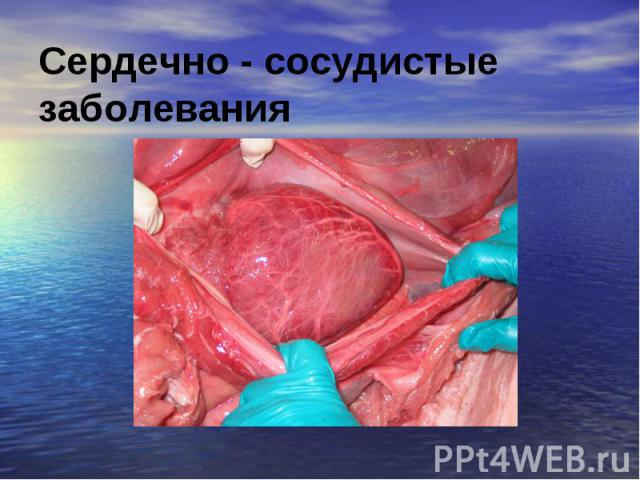 Сердечно - сосудистые заболевания