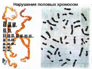 Нарушения половых хромосом