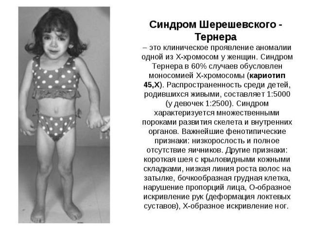 Синдром Шерешевского - Тернера – это клиническое проявление аномалии одной из X-хромосом у женщин. Синдром Тернера в 60%случаев обусловлен моносомией X-хромосомы (кариотип 45,X). Распространенность среди детей, родившихся живыми, составляет 1:5000…