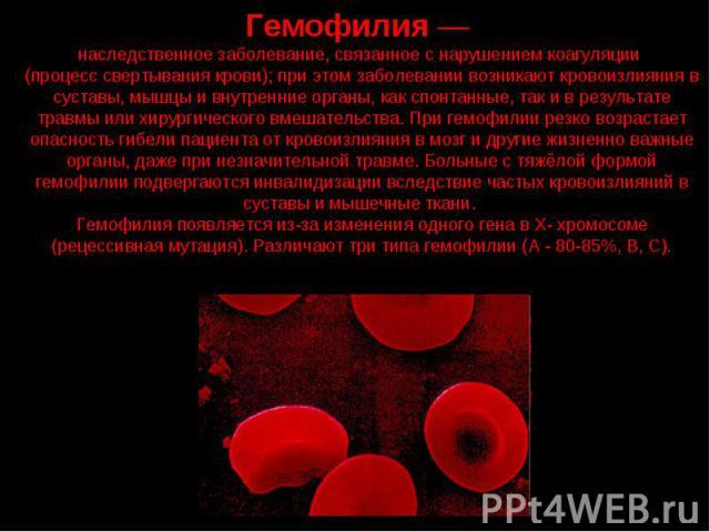 Гемофилия — наследственное заболевание, связанное с нарушением коагуляции (процесс свертывания крови); при этом заболевании возникают кровоизлияния в суставы, мышцы и внутренние органы, как спонтанные, так и в результате травмы или хирургического вм…
