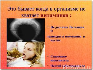 Это бывает когда в организме не хватает витаминов : Не достаток Витамина D приво