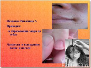 Нехватка Витамина А Приводит: -к образованию заеды на губах Ломкости и выпадению
