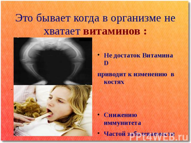 Это бывает когда в организме не хватает витаминов : Не достаток Витамина D приводит к изменению в костях Снижению иммунитета Частой заболеваемости