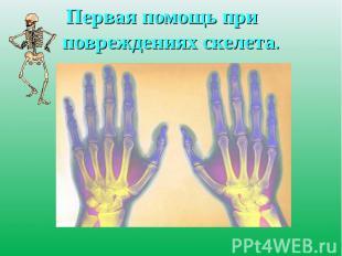 Первая помощь при повреждениях скелета