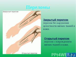 Переломы Закрытый перелом- перелом без нарушения целостности мягких тканей и кож