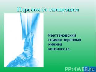 Перелом со смещениРентгеновский снимок перелома нижней конечности. ем