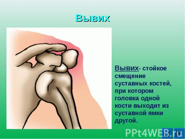 ВывихВывих- стойкое смещение суставных костей, при котором головка одной кости выходит из суставной ямки другой.