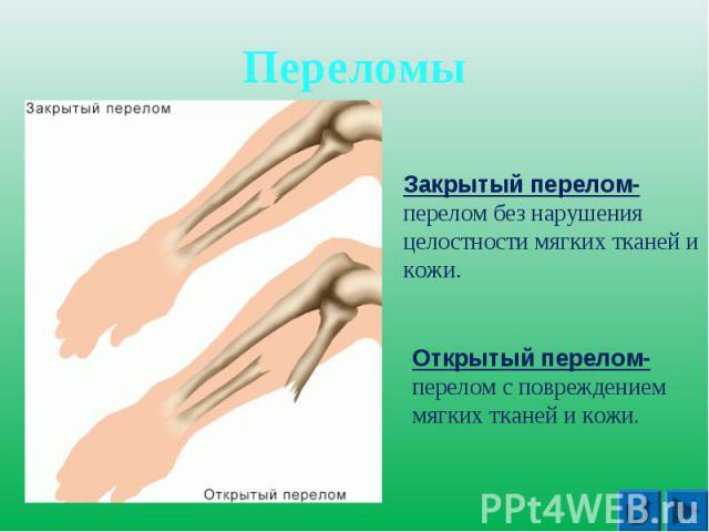 Переломы Закрытый перелом- перелом без нарушения целостности мягких тканей и кожи. Открытый перелом- перелом с повреждением мягких тканей и кожи.