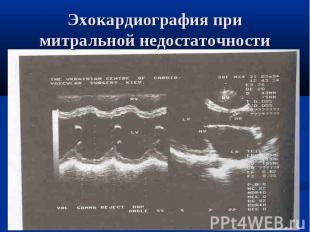 Эхокардиография при митральной недостаточности