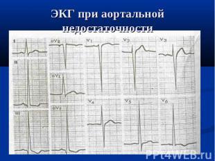 ЭКГ при аортальной недостаточности