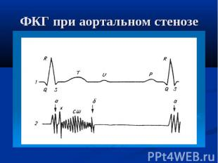 ФКГ при аортальном стенозе