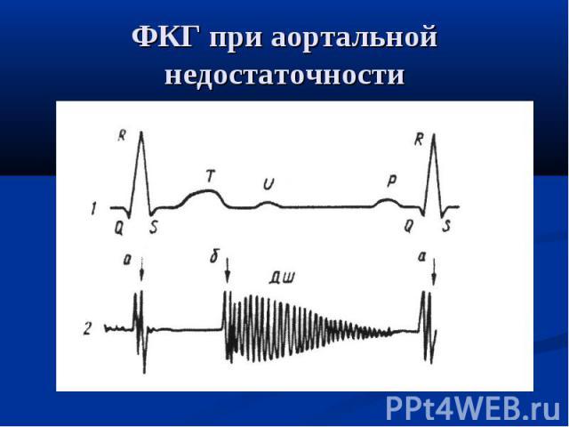 ФКГ при аортальной недостаточности