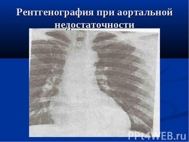 Рентгенография при аортальной недостаточности