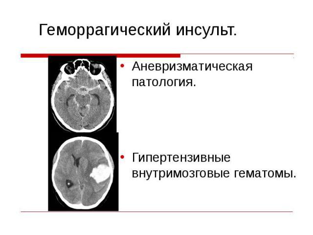 Аневризматическая патология. Аневризматическая патология. Гипертензивные внутримозговые гематомы.