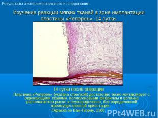 14 сутки после операции 14 сутки после операции Пластина «Реперен» (указана стре