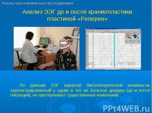 По данным ЭЭГ характер биоэлектрической активности, зарегистрированный у одних и