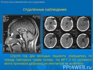 Спустя год два молодых пациента обращались по поводу повторных травм головы. На